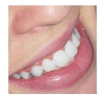 clareamento-dentario